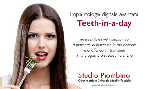 Implantologia digitale Teeth-in-a-Day
