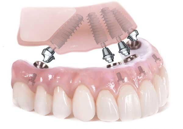 All on 4 dentiera protesi full arch tutti denti arcata mandibola mascellare impianti implantologia studio michele piombino dentista caserta napoli