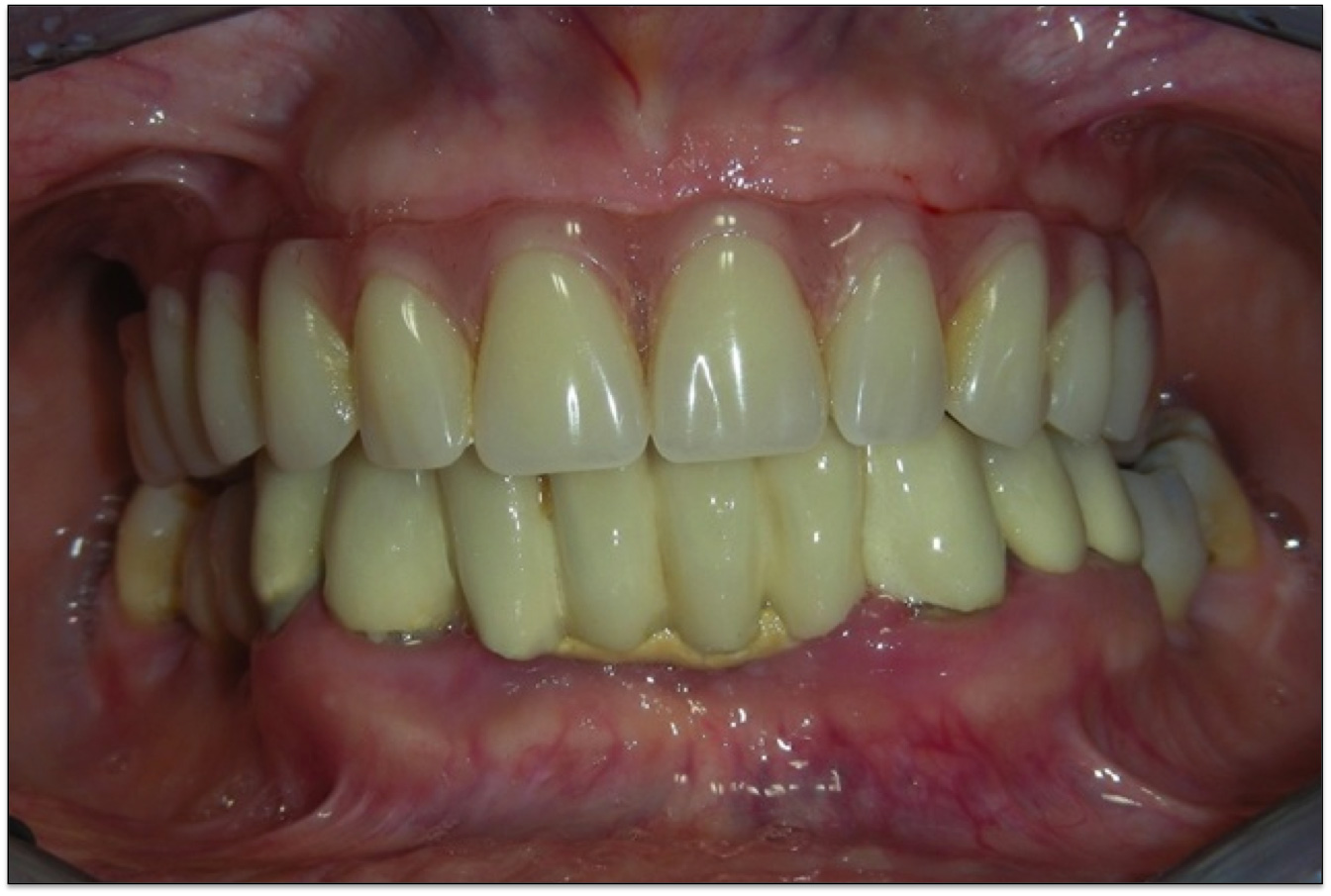 all on 4 implantologia denti mascella mandibola dentiera studio piombino michele pasquale caserta napoli
