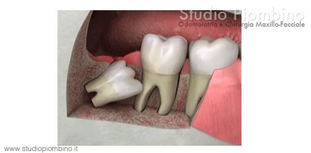 Super Chirurgia del dente del giudizio - Studio Piombino Caserta Napoli WN64